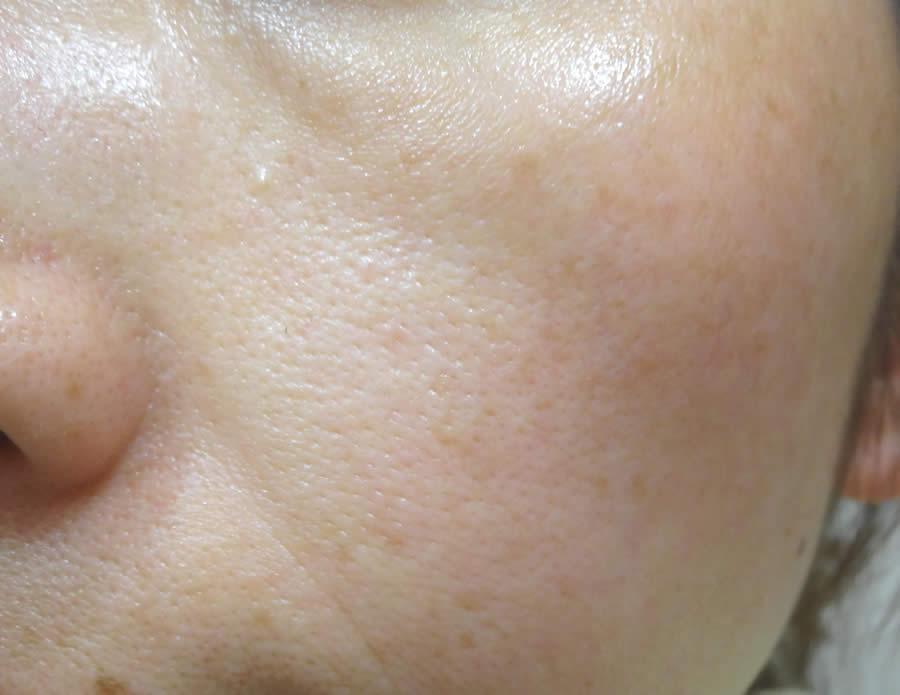 ビューティブーケ 肌の状態
