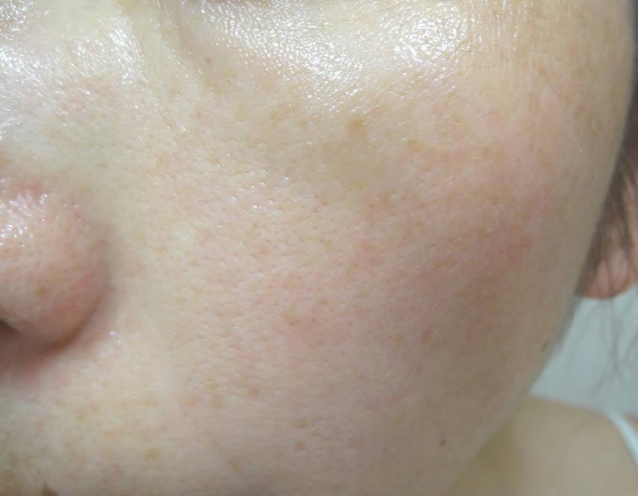 ビューティブーケを1ヶ月使用した肌