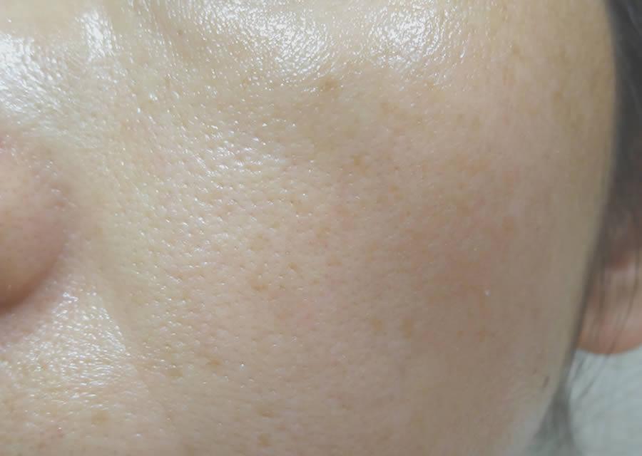 ビューティブーケを3か月使ったお肌の状態