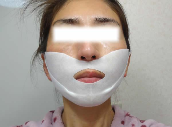 ビューティブーケの定期購入者限定品「ハリつやリフトゲルマスク」を装着したところ